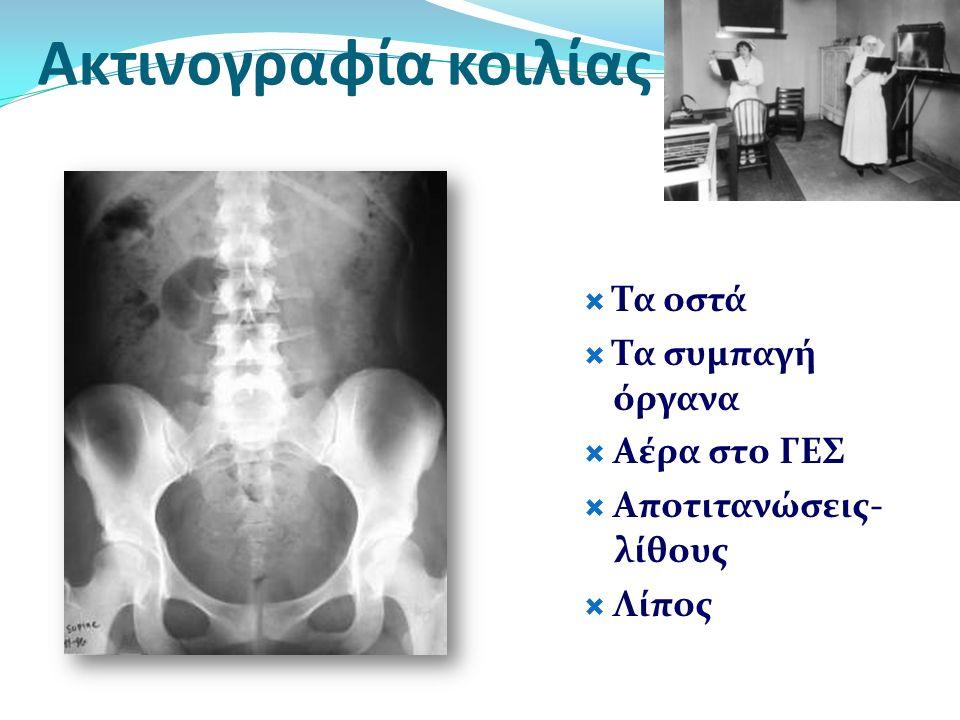 Ακτινογραφία κοιλίας Τα οστά Τα συμπαγή όργανα Αέρα στο ΓΕΣ