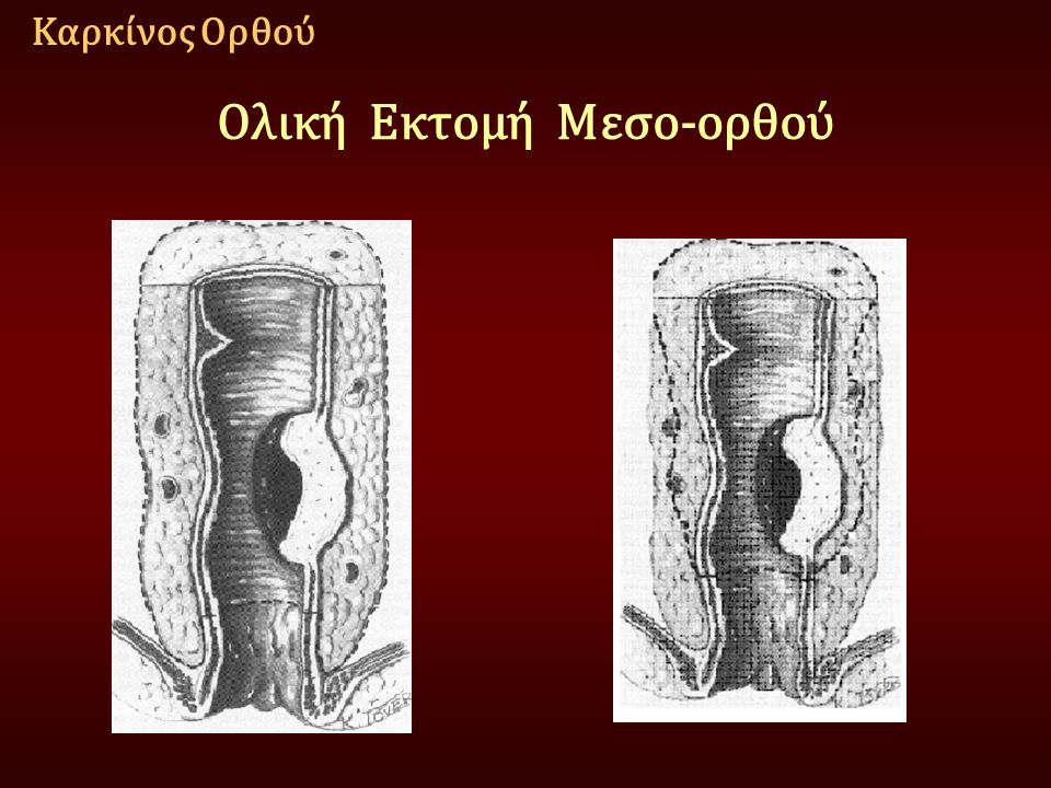 Ολική Εκτομή Μεσο-ορθού