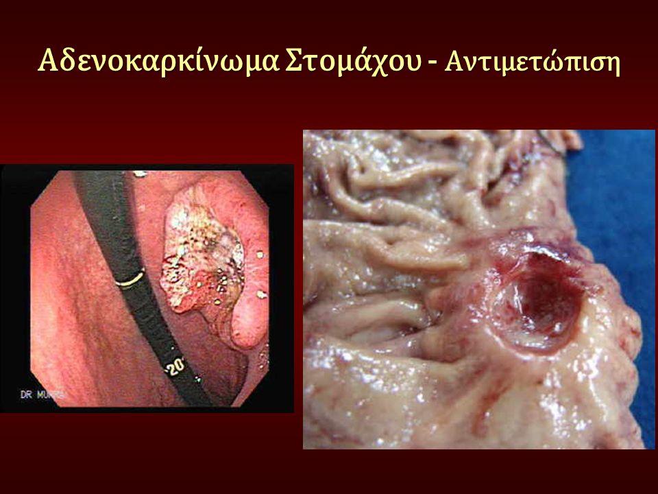 Αδενοκαρκίνωμα Στομάχου - Αντιμετώπιση