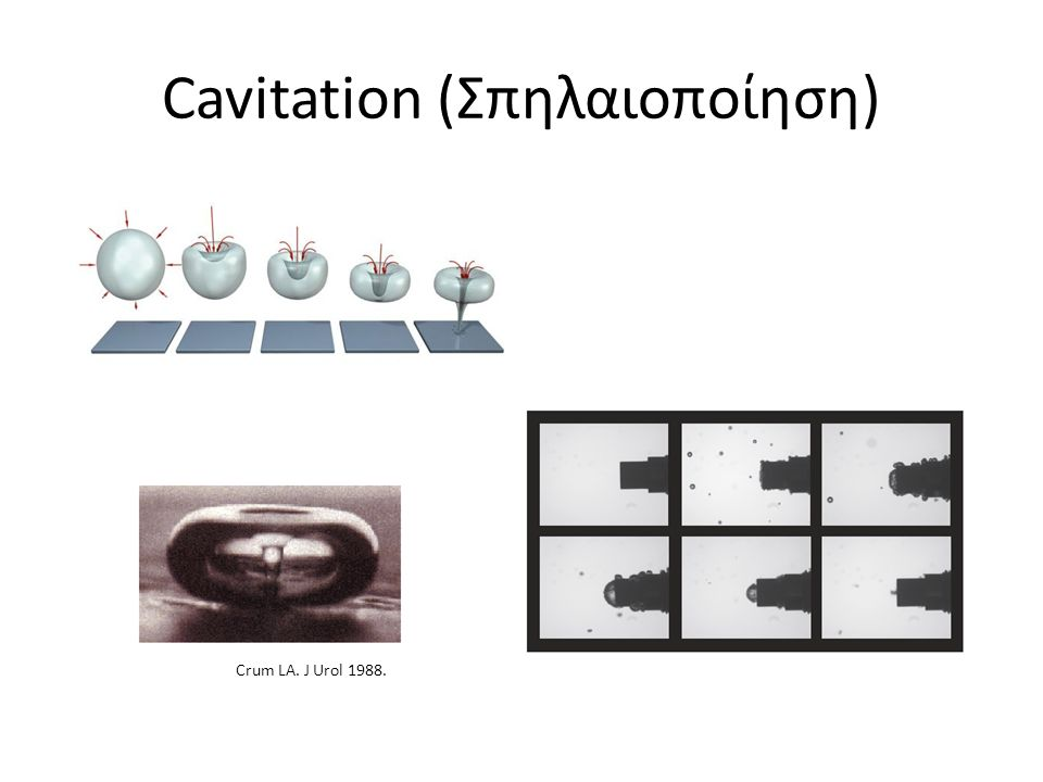 Cavitation (Σπηλαιοποίηση)