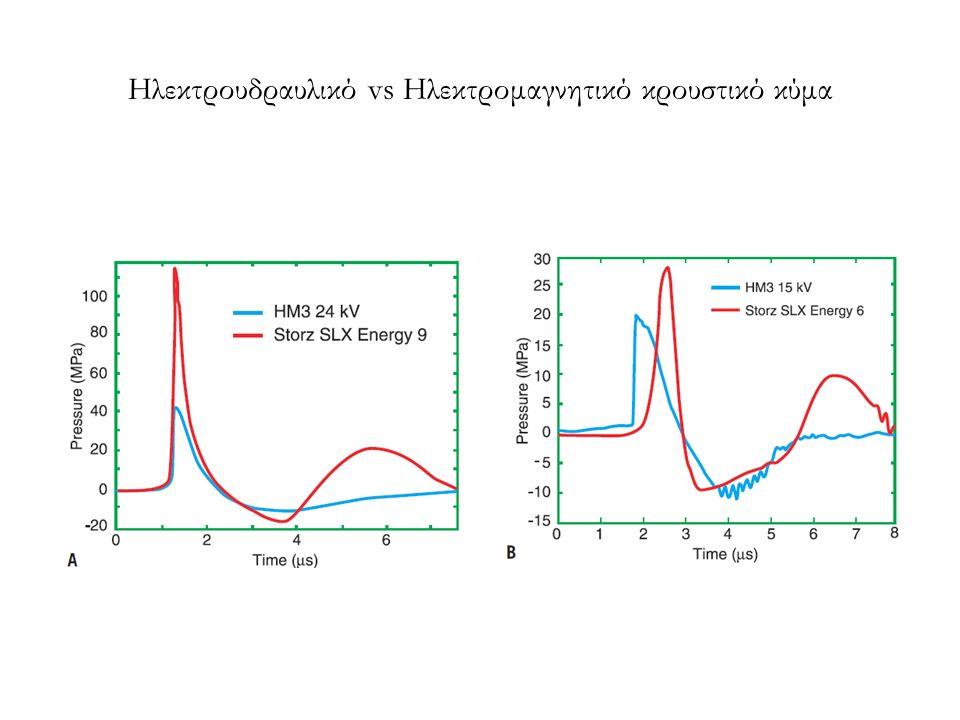 Ηλεκτρουδραυλικό vs Ηλεκτρομαγνητικό κρουστικό κύμα