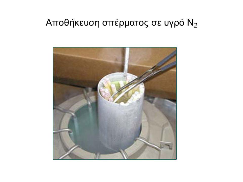 Αποθήκευση σπέρματος σε υγρό Ν2