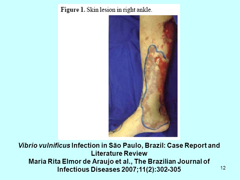 Vibrio vulnificus Infection in São Paulo, Brazil: Case Report and Literature Review