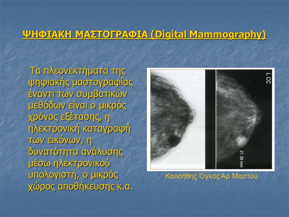 ΨΗΦΙΑΚΗ ΜΑΣΤΟΓΡΑΦΙΑ (Digital Mammography)