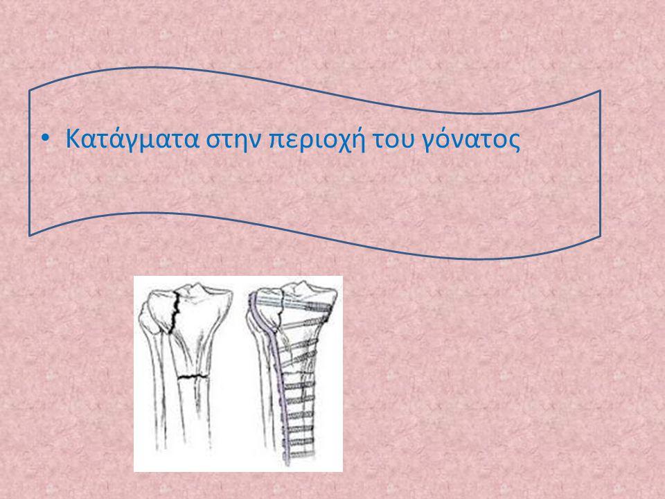 Κατάγματα στην περιοχή του γόνατος