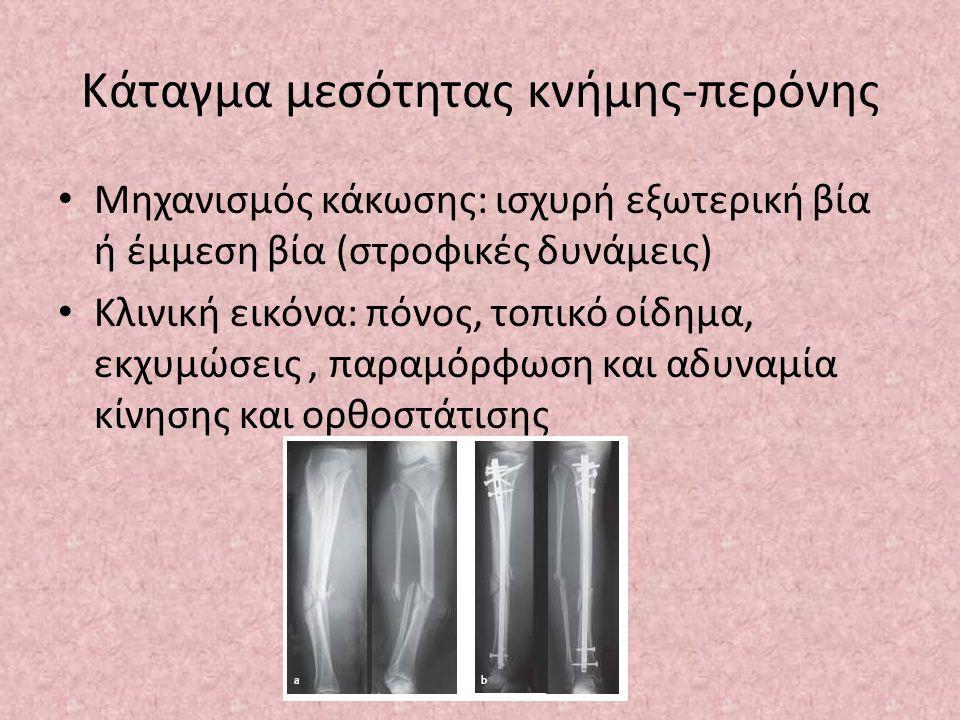 Κάταγμα μεσότητας κνήμης-περόνης