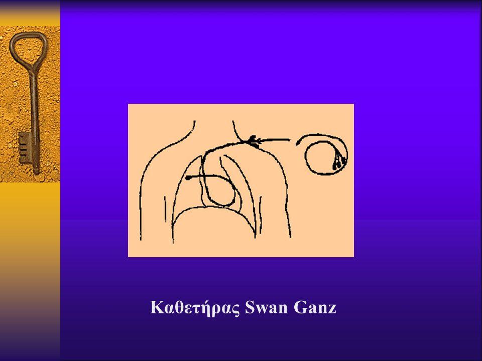 Καθετήρας Swan Ganz