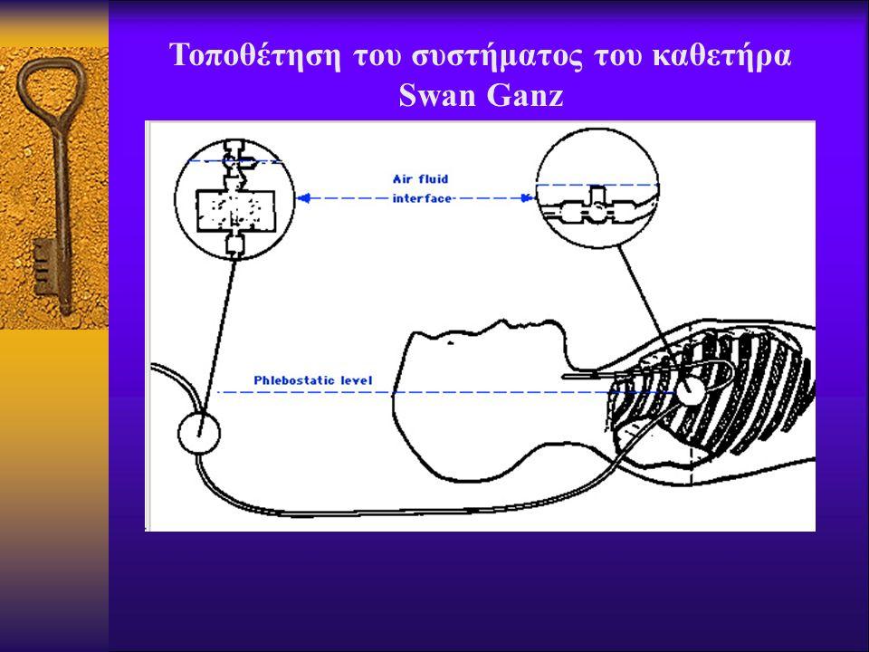 Τοποθέτηση του συστήματος του καθετήρα