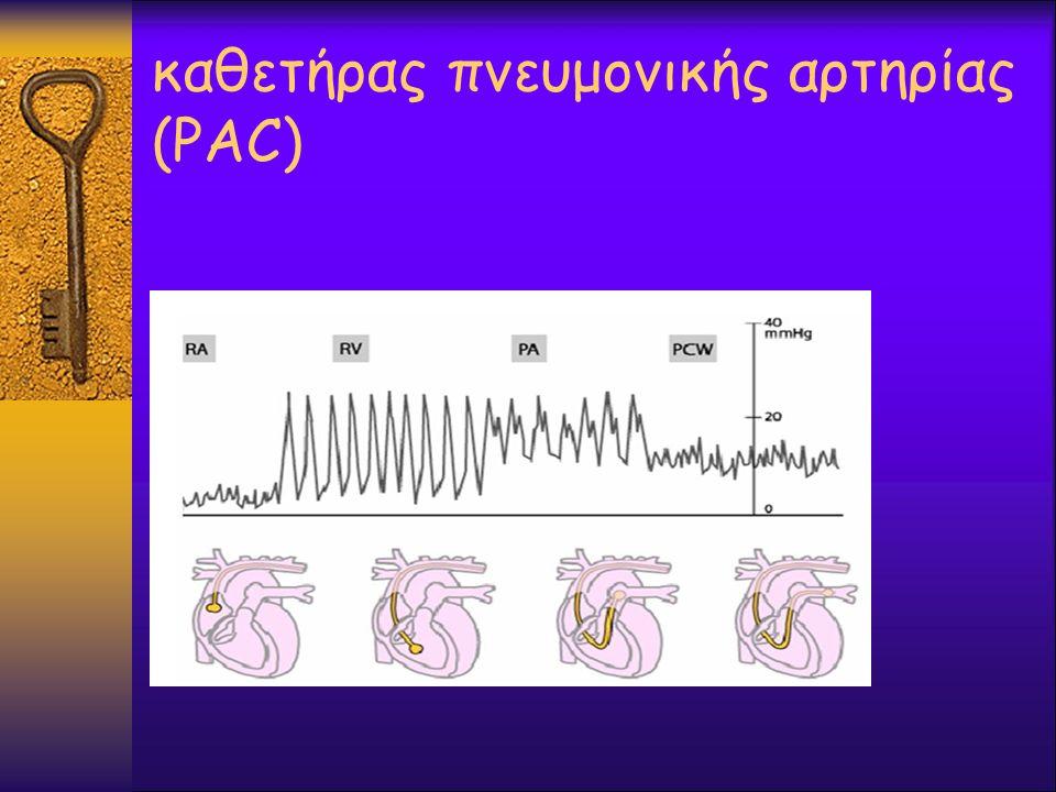 καθετήρας πνευμονικής αρτηρίας (PAC)