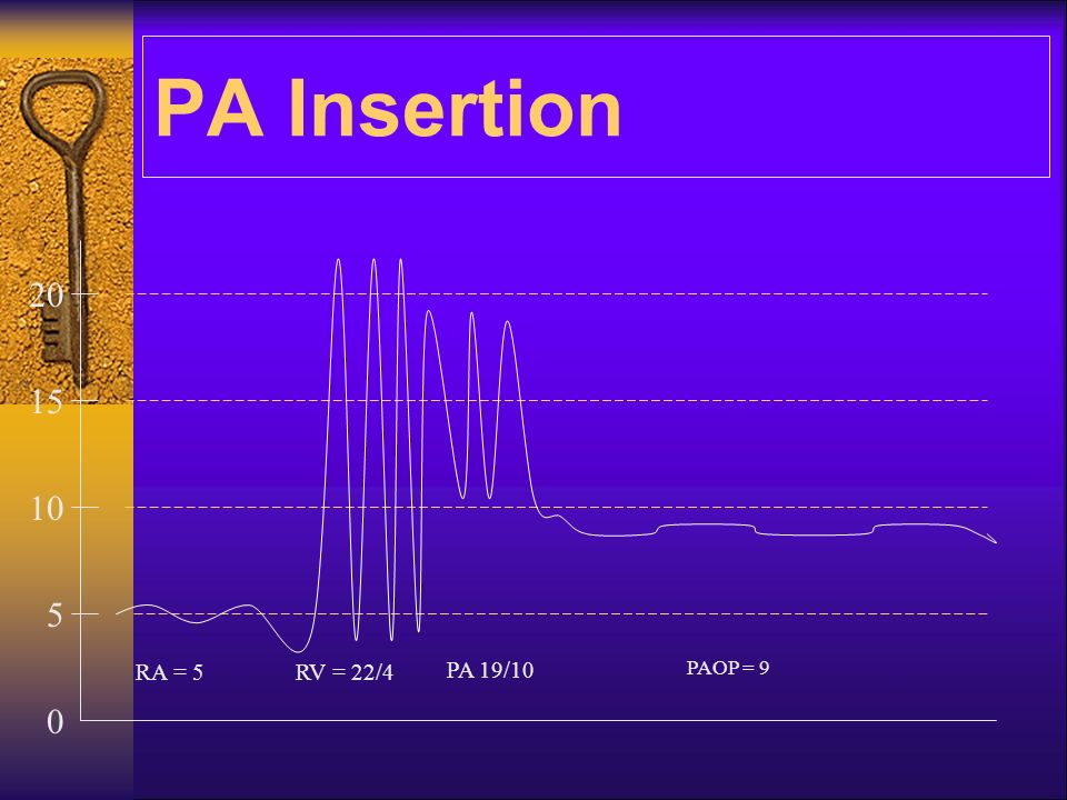 PA Insertion 20 15 10 5 RA = 5 RV = 22/4 PA 19/10 PAOP = 9
