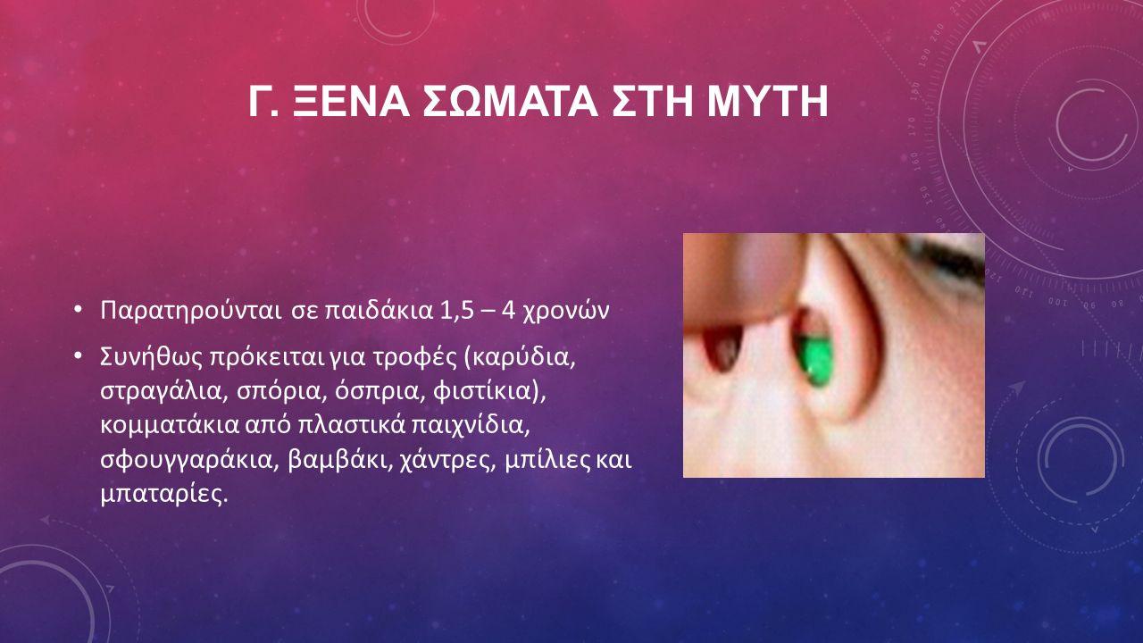 γ. ΞΕνα σΩματα στη μΥτη Παρατηρούνται σε παιδάκια 1,5 – 4 χρονών