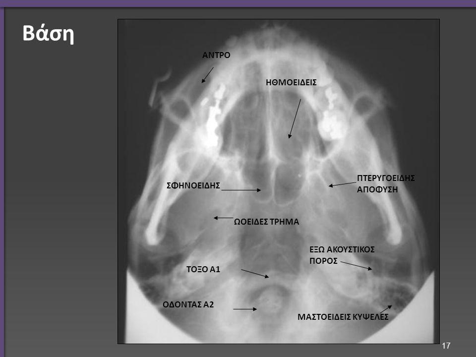 Πλάγια λήψη ρινικών οστών