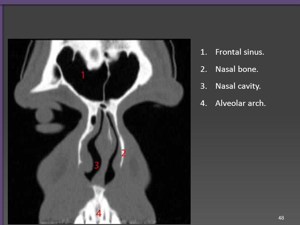 Frontal bone. Orbital cavity. Maxillary sinus.