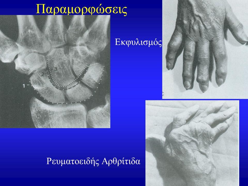 Παραμορφώσεις Εκφυλισμός Ρευματοειδής Αρθρίτιδα