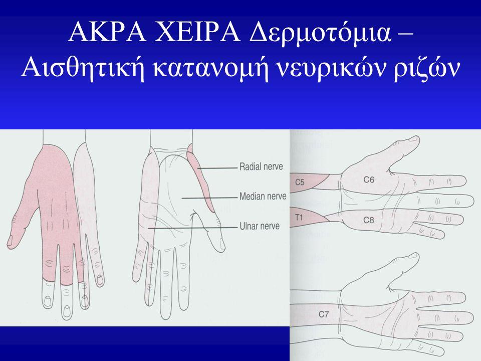 ΑΚΡΑ ΧΕΙΡΑ Δερμοτόμια – Αισθητική κατανομή νευρικών ριζών