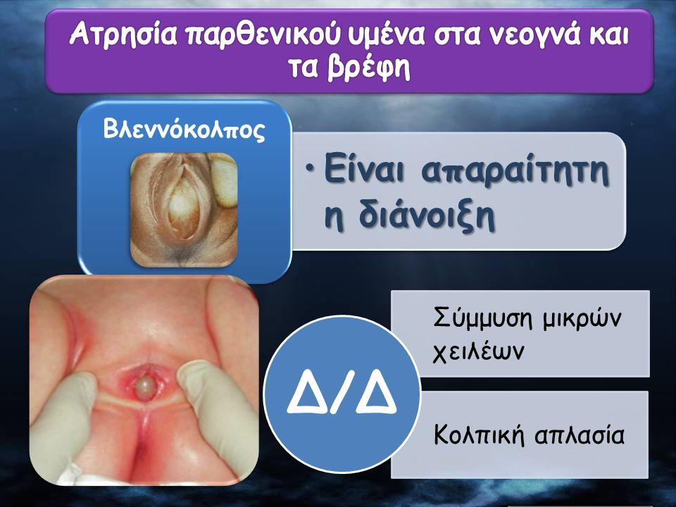Ατρησία παρθενικού υμένα στα νεογνά και τα βρέφη