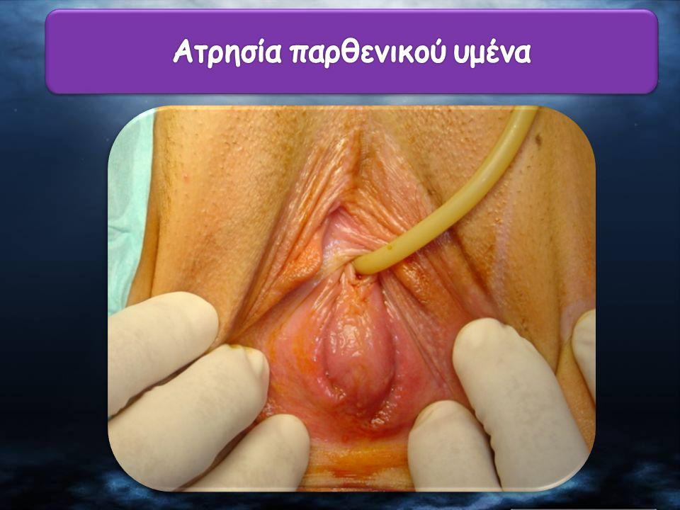Ατρησία παρθενικού υμένα