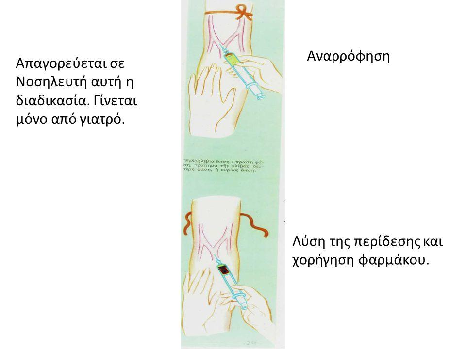 Αναρρόφηση Απαγορεύεται σε Νοσηλευτή αυτή η διαδικασία.