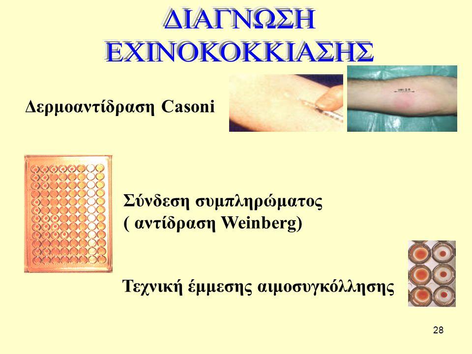 ΔΙΑΓΝΩΣΗ ΕΧΙΝΟΚΟΚΚΙΑΣΗΣ Δερμοαντίδραση Casoni Σύνδεση συμπληρώματος