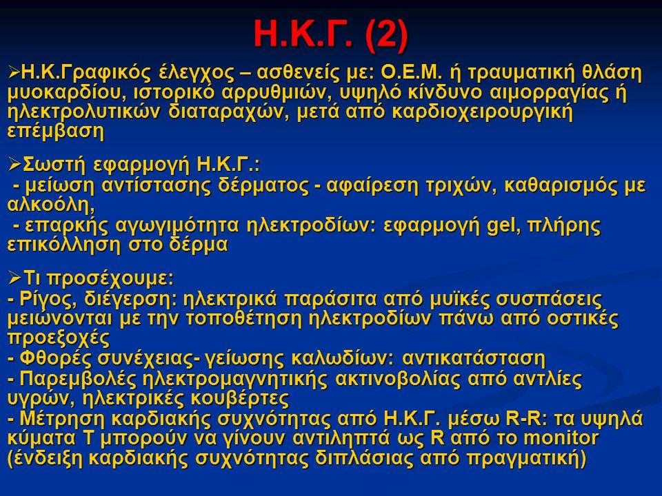 Η.Κ.Γ. (2) Σωστή εφαρμογή Η.Κ.Γ.: