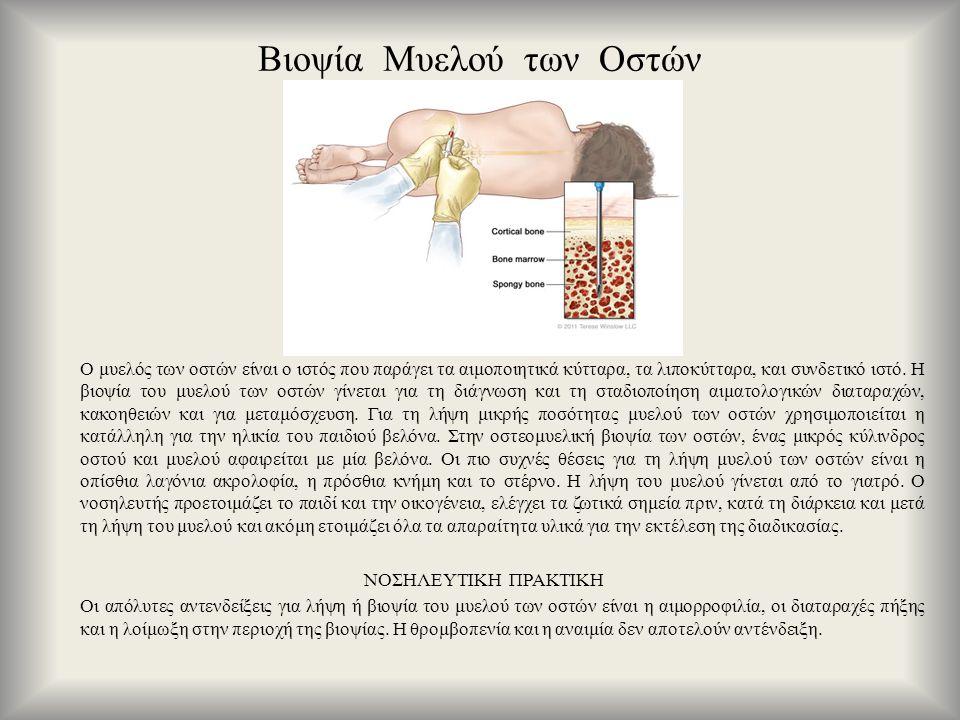Βιοψία Μυελού των Οστών