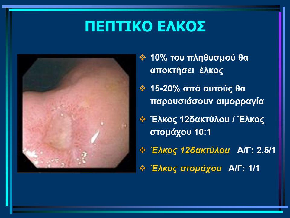 ΠΕΠΤΙΚΟ ΕΛΚΟΣ 10% του πληθυσμού θα αποκτήσει έλκος