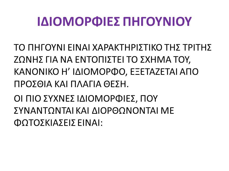ΙΔΙΟΜΟΡΦΙΕΣ ΠΗΓΟΥΝΙΟΥ