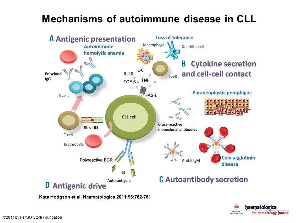Mechanisms of autoimmune disease in CLL