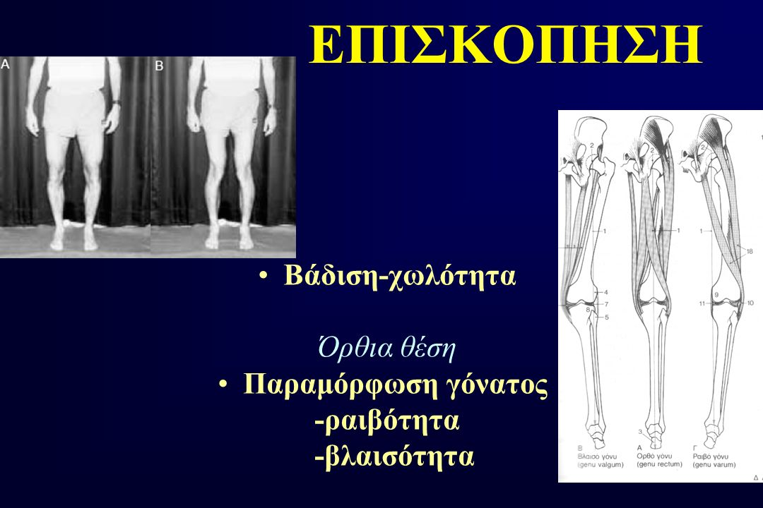 ΕΠΙΣΚΟΠΗΣΗ Βάδιση-χωλότητα Όρθια θέση Παραμόρφωση γόνατος -ραιβότητα