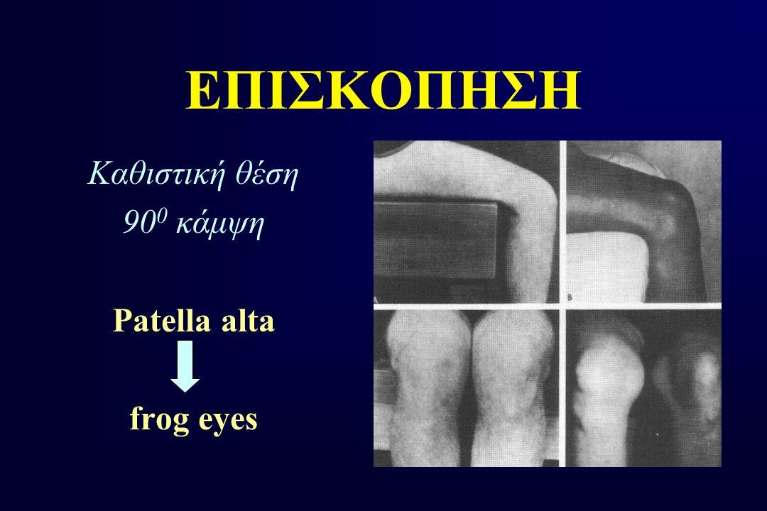 ΕΠΙΣΚΟΠΗΣΗ Καθιστική θέση 900 κάμψη Patella alta frog eyes