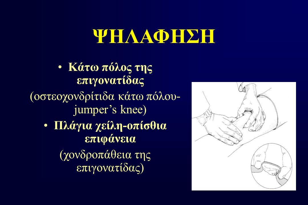 Κάτω πόλος της επιγονατίδας Πλάγια χείλη-οπίσθια επιφάνεια