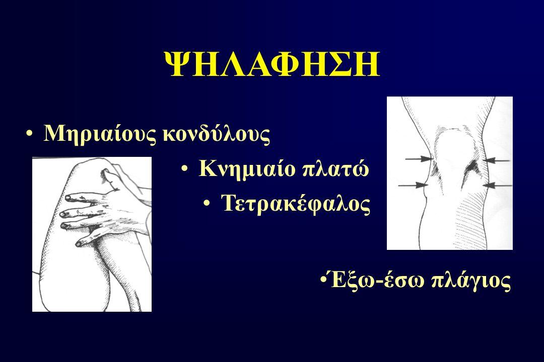 ΨΗΛΑΦΗΣΗ Μηριαίους κονδύλους Κνημιαίο πλατώ Τετρακέφαλος