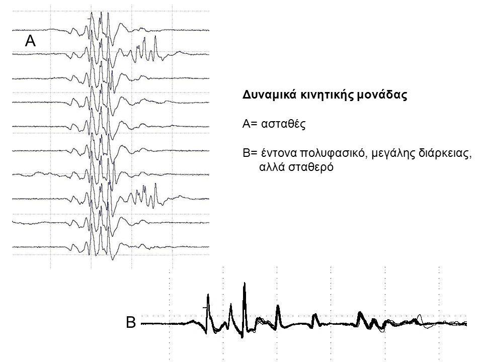 Α Β Δυναμικά κινητικής μονάδας Α= ασταθές