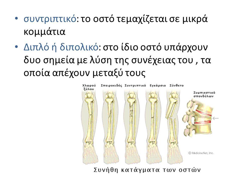 συντριπτικό: το οστό τεμαχίζεται σε μικρά κομμάτια