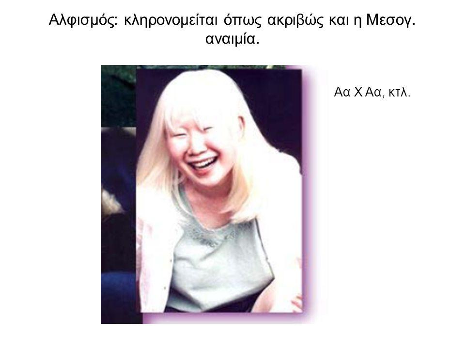 Αλφισμός: κληρονομείται όπως ακριβώς και η Μεσογ. αναιμία.