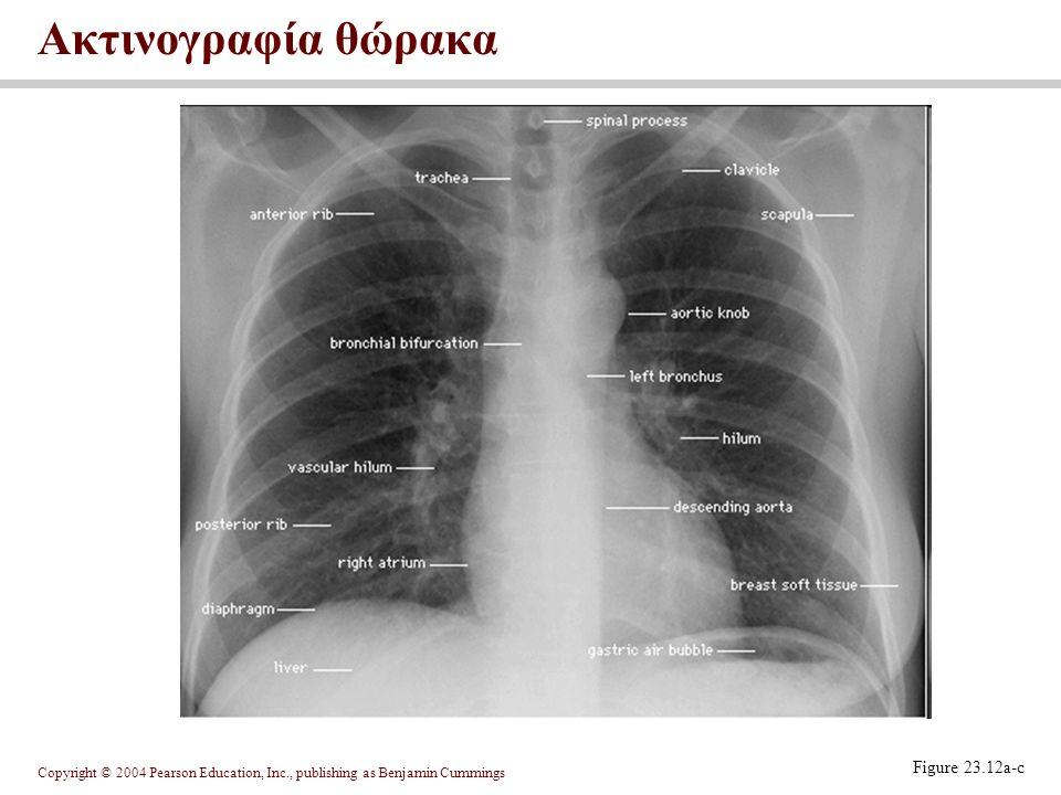 Ακτινογραφία θώρακα Figure 23.12a-c