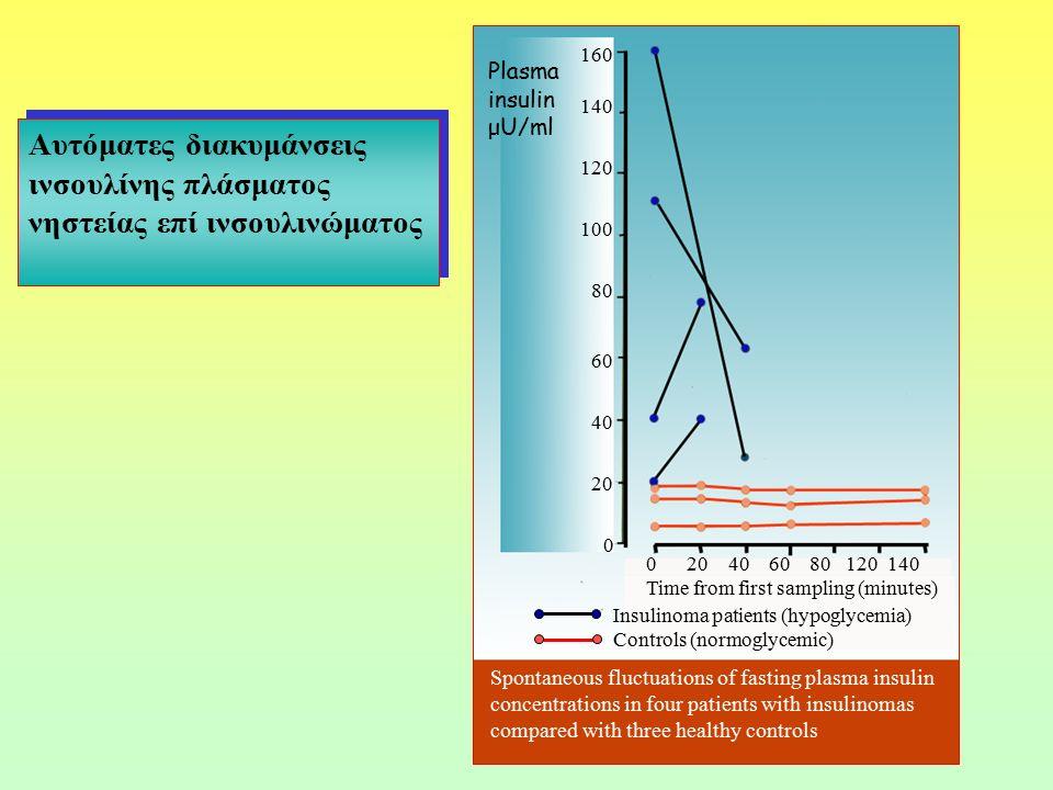 160 Plasma insulin μU/ml. 140. Αυτόματες διακυμάνσεις ινσουλίνης πλάσματος νηστείας επί ινσουλινώματος.