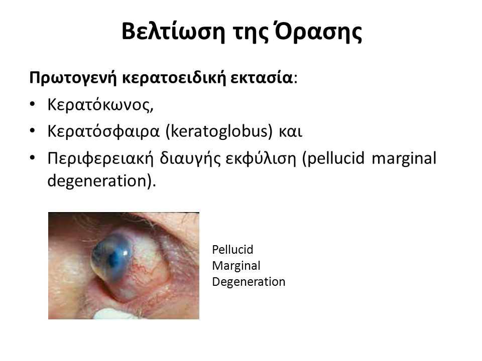 Βελτίωση της Όρασης