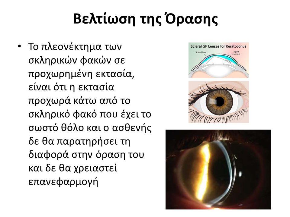 Βελτίωση της Όρασης Δευτερογενή κερατοειδική εκτασία: προέρχεται από μετά-διαθλαστική χειρουργική, περιλαμβάνει: