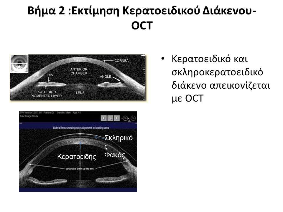 Βήμα 2 :Εκτίμηση Κερατοειδικού Διάκενου- Σχισμοειδή λυχνία