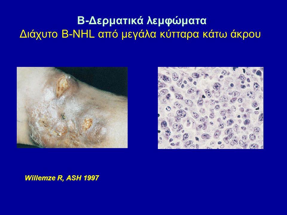 B-Δερματικά λεμφώματα Διάχυτο Β-NHL από μεγάλα κύτταρα κάτω άκρου