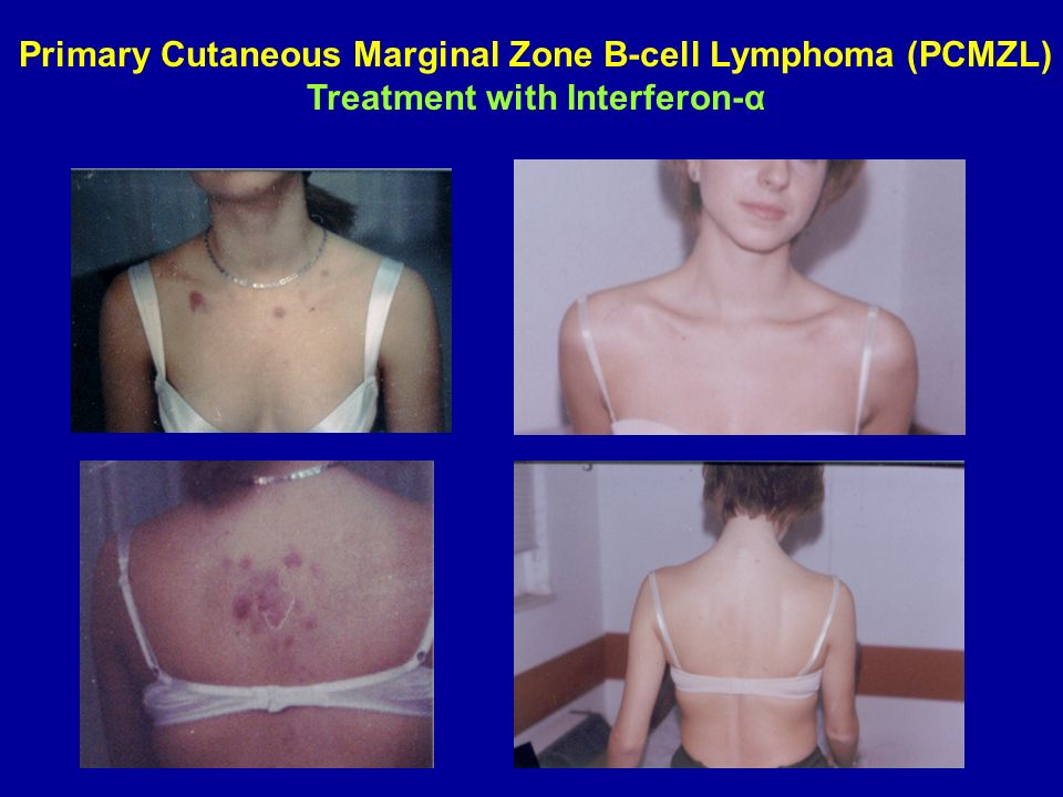 Primary Cutaneous Marginal Zone B-cell Lymphoma (PCMZL)