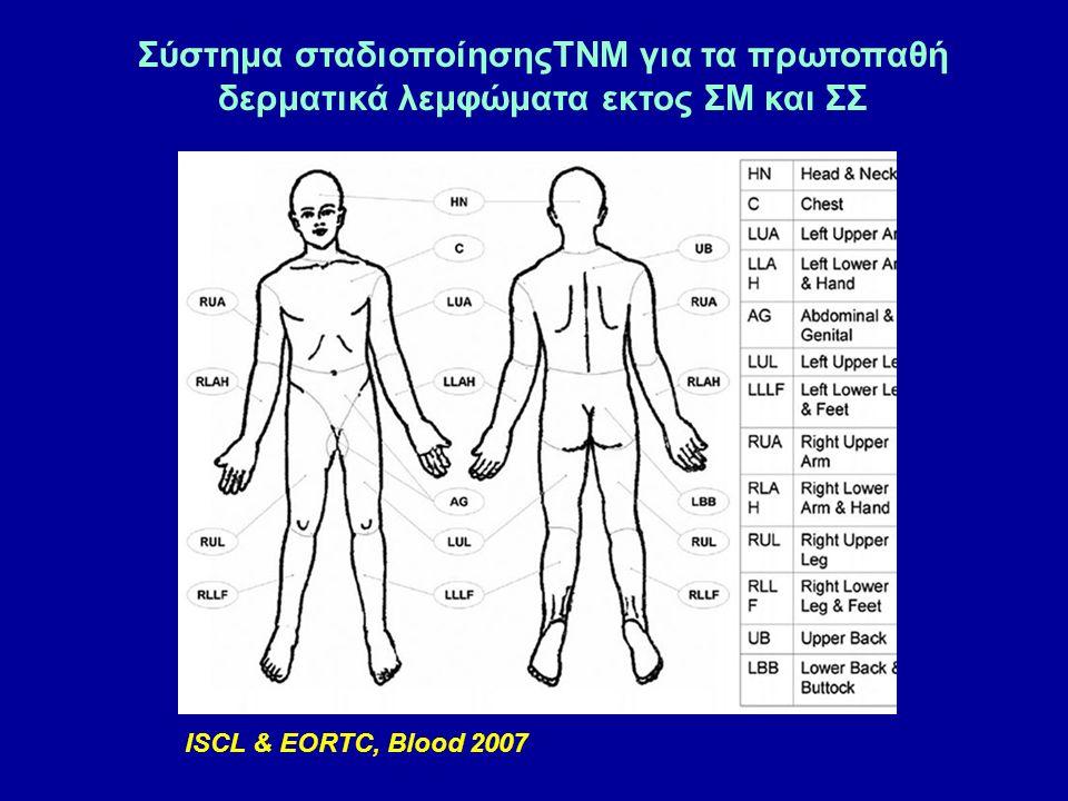 Σύστημα σταδιοποίησηςTNM για τα πρωτοπαθή δερματικά λεμφώματα εκτος ΣΜ και ΣΣ