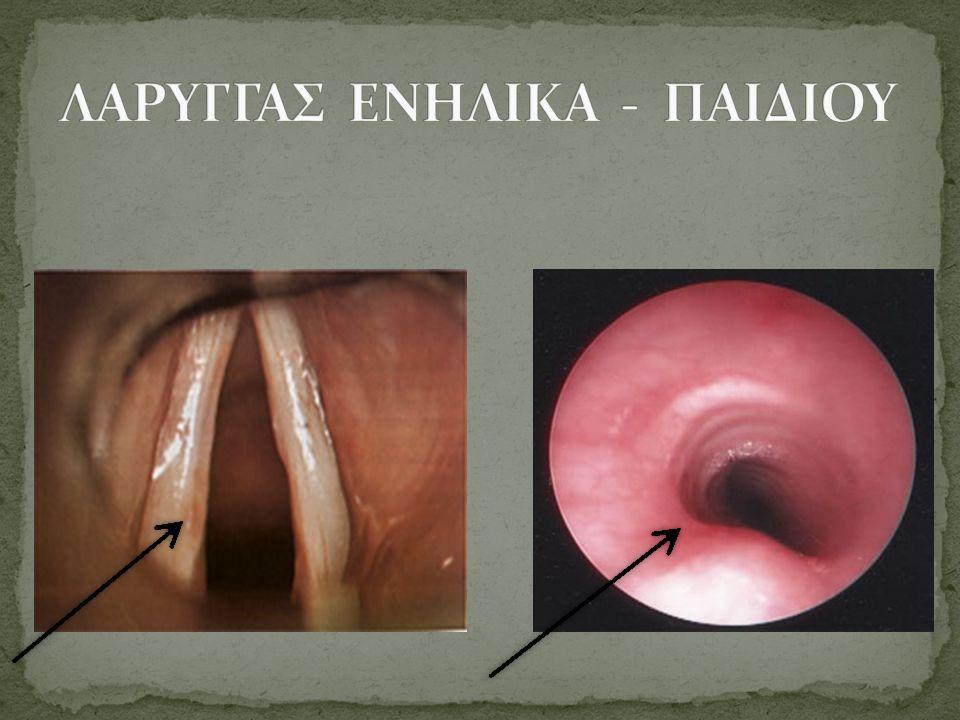 ΛΑΡΥΓΓΑΣ ΕΝΗΛΙΚΑ - ΠΑΙΔΙΟΥ