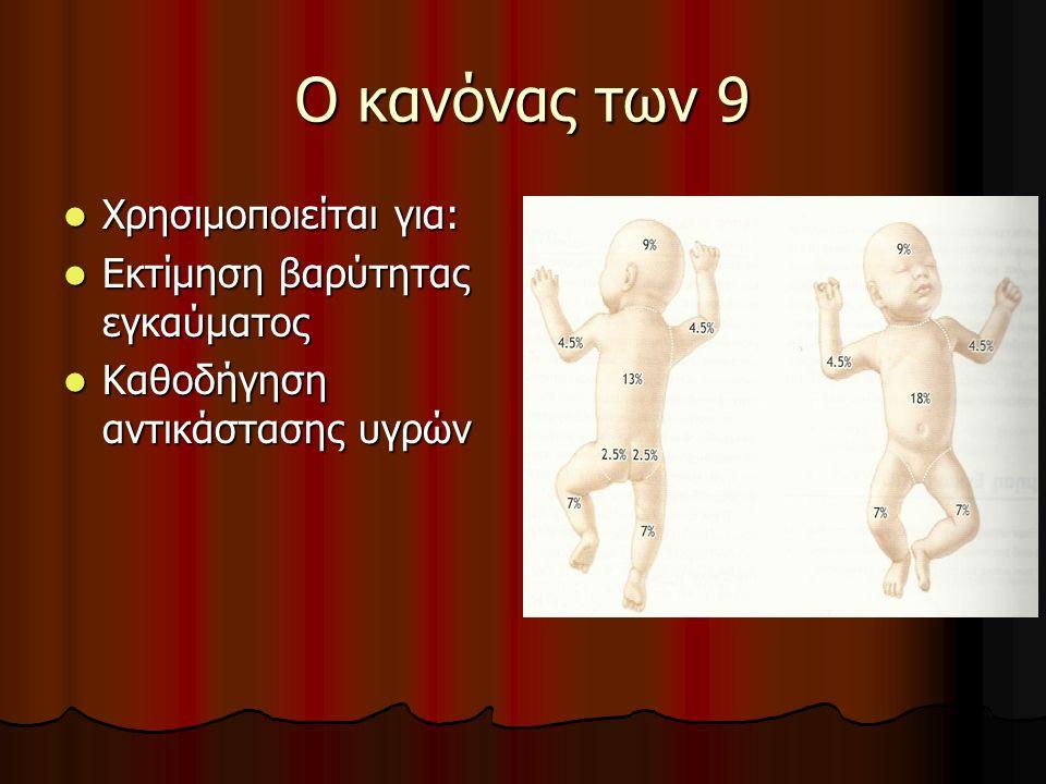 Ο κανόνας των 9 Χρησιμοποιείται για: Εκτίμηση βαρύτητας εγκαύματος