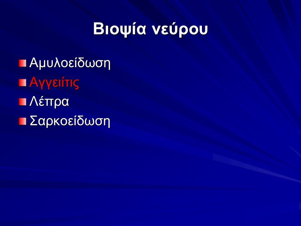 Βιοψία νεύρου Αμυλοείδωση Αγγειίτις Λέπρα Σαρκοείδωση