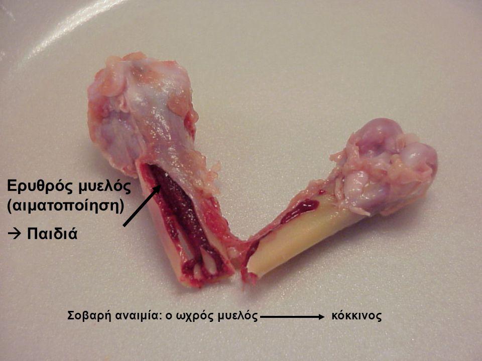 Ερυθρός μυελός (αιματοποίηση)  Παιδιά