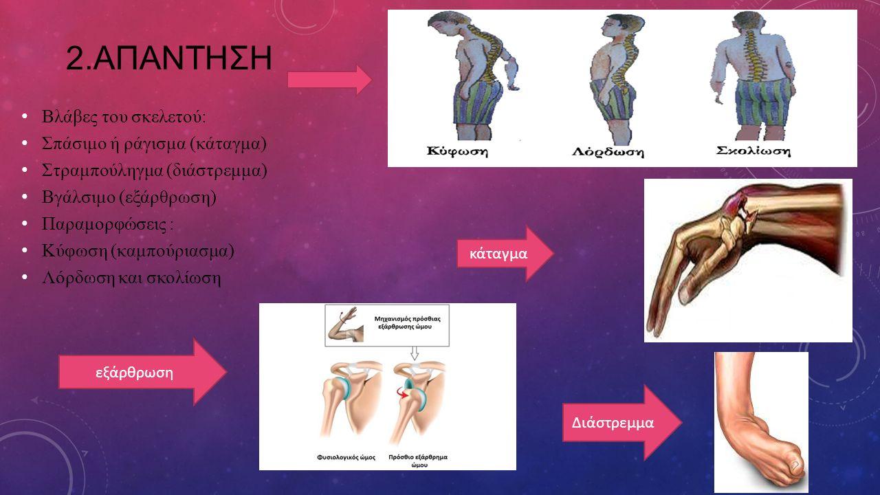 2.ΑΠΑΝΤΗΣΗ Βλάβες του σκελετού: Σπάσιμο ή ράγισμα (κάταγμα)
