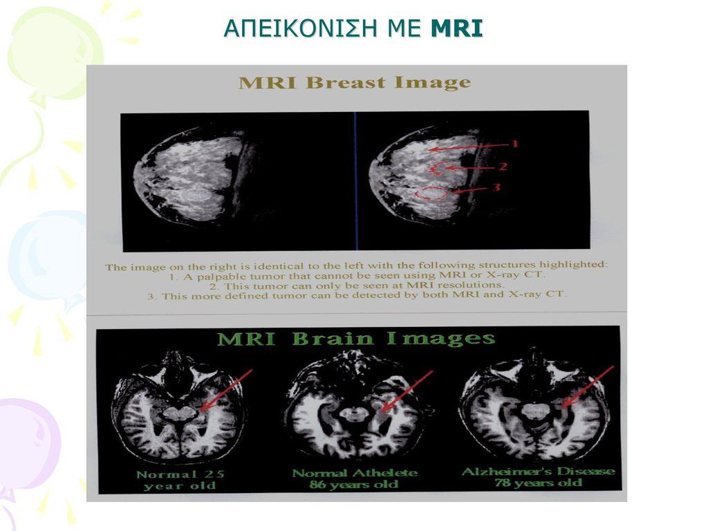 AΠΕΙΚΟΝΙΣΗ ΜΕ MRI
