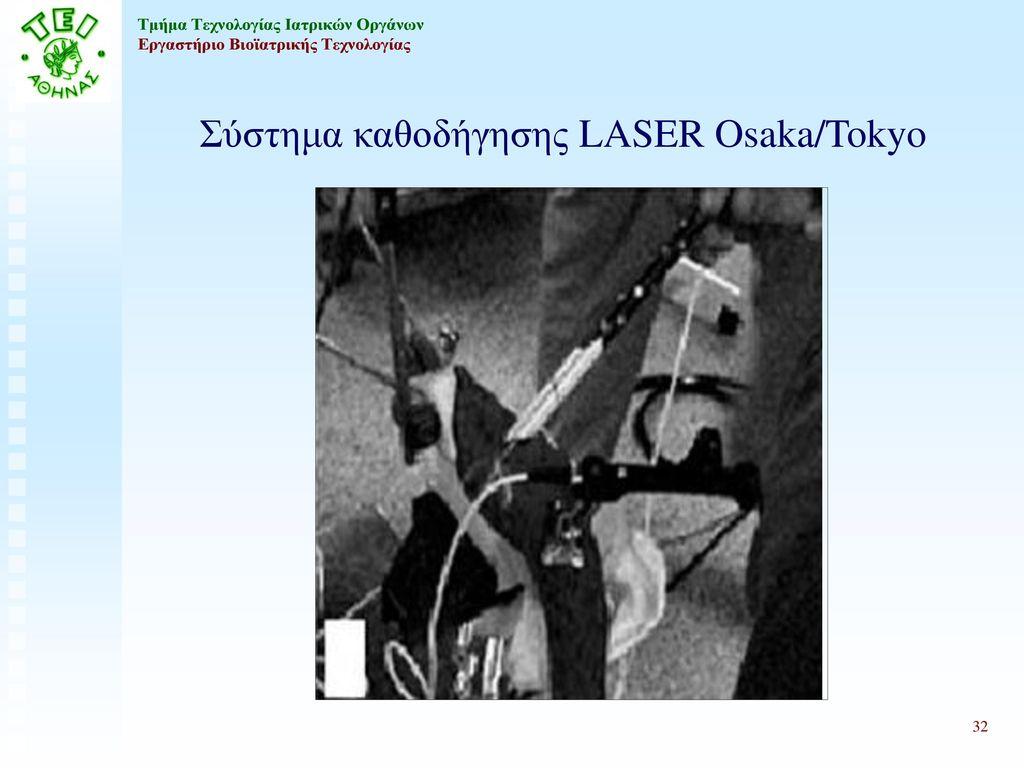 Σύστημα καθοδήγησης LASER Osaka/Tokyo